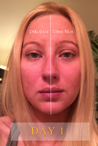 24K Gold Serum Results Day 1