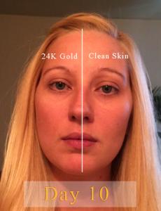 24K Gold Serum Results Day 10