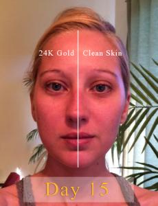 24K Gold Serum Results Day 15