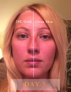 24K Gold Serum Results Day 5